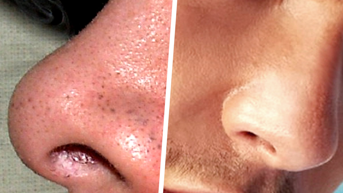 7-tips-para-eliminar-los-puntos-negros-de-la-nariz-y-cara-rapidamente