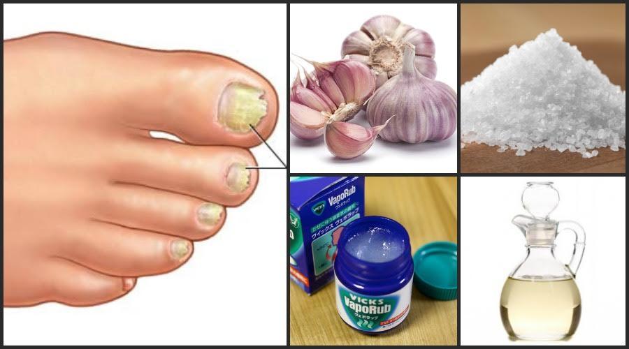 5 Potentes Remedios Caseros para eliminar los hongos de las uñas: Pies y Manos