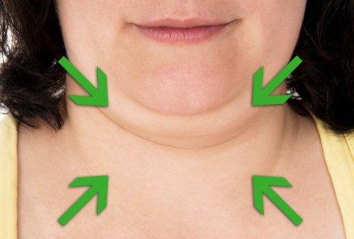 Como eliminar la papada naturalmente y sin cirugía