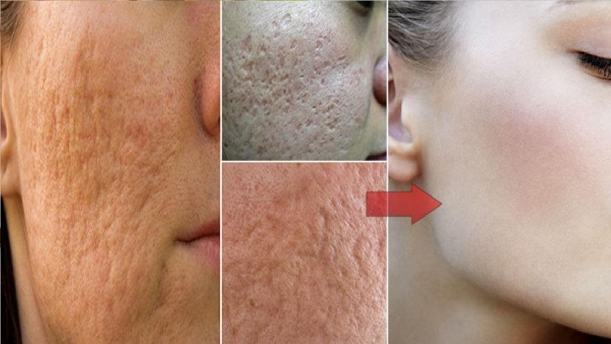 Descubre cómo cerrar los poros de forma rapida y natural