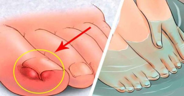 No más uñas encarnadas aplicando estos remedios caseros