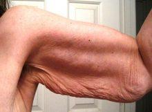 Elimina la flacidez de los brazos rapido y naturalmente con estos efectivos metodos