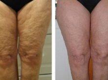 Elimina la flacidez de caderas y muslos con esta crema casera