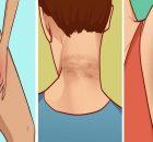 Elimina las feas manchas oscuras del cuello, axilas y muslos en tan sólo 15 minutos..!!