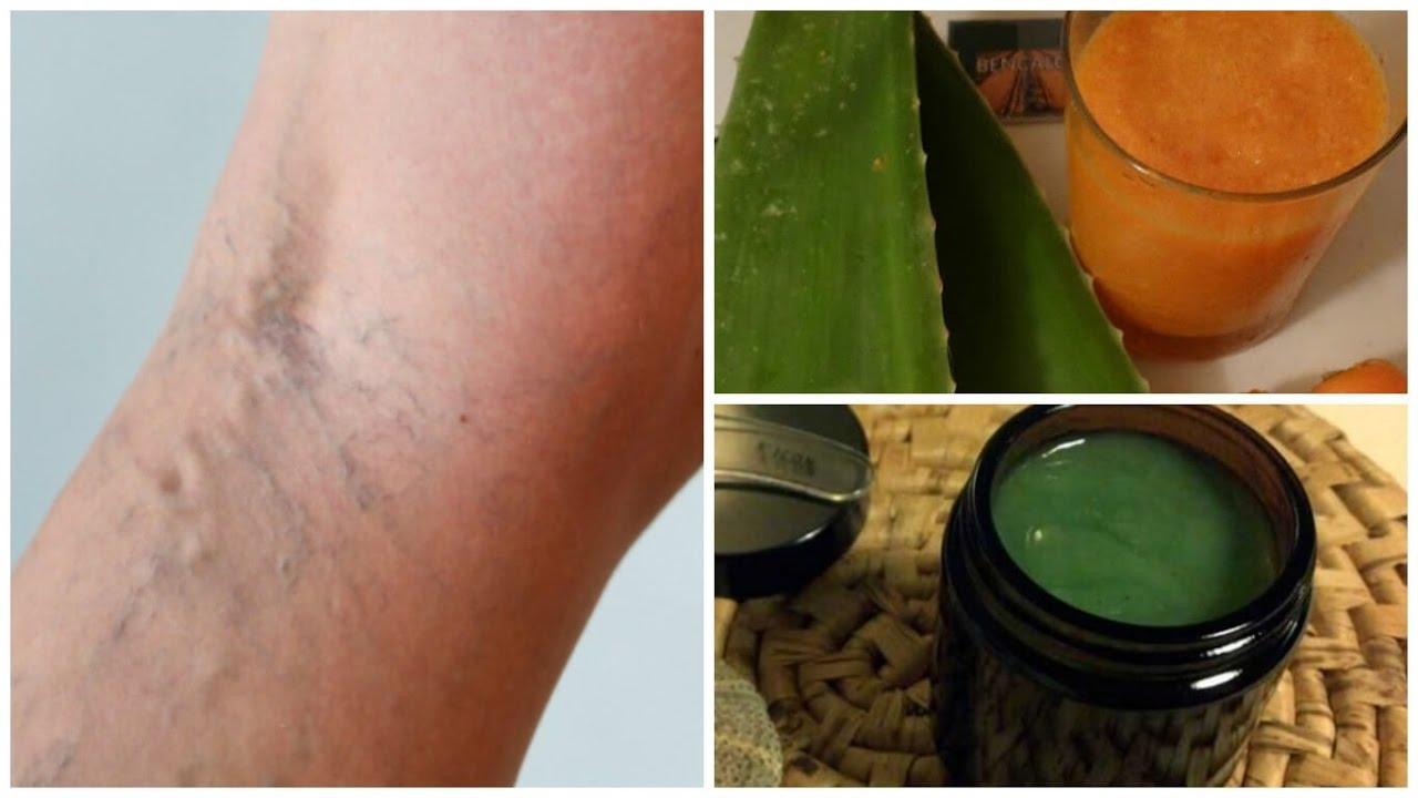 Мучает варикоз вен на ногах? Лечение народными средствами в 11