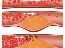 Limpia las arterias y elimina el colesterol en una semana con este remedio natural