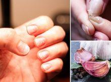 Cómo tener uñas más fuertes con el uso del ajo. Facil y sensillo