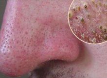 eliminar puntos negros nariz